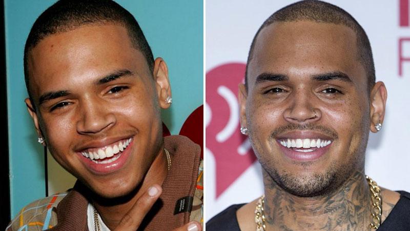 Chris-Brown-Avant-Apres