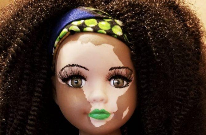 kay-customz-vitiligo-poupee